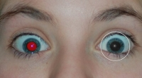 Free Red-eye Reduction Tool 2.0