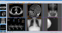 Sante DICOM Viewer FREE 5.8.2