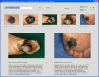 YSP Dermatology Image Database 1.41